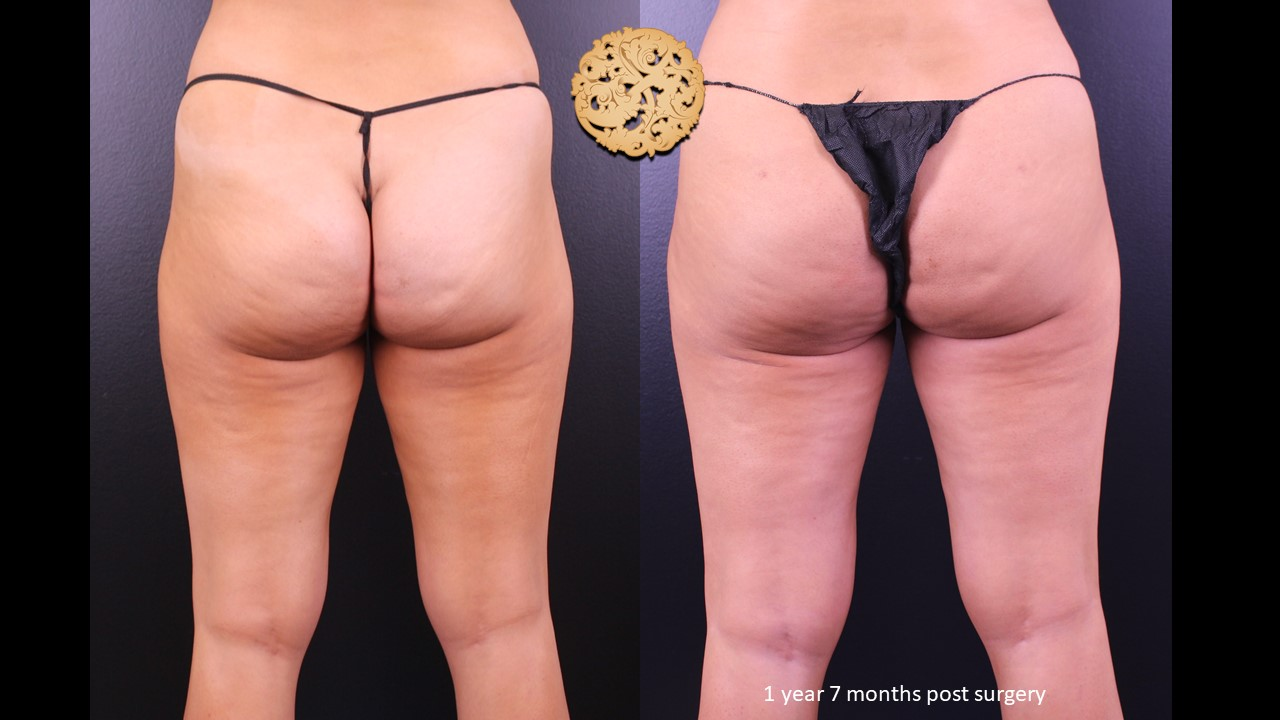 Brazilian butt lift fat grafting before and after