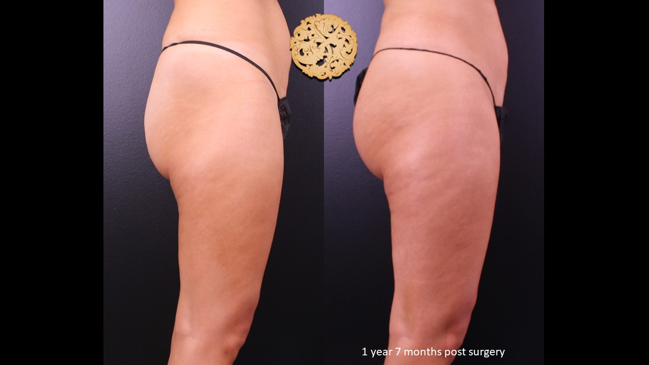 Brazilian Butt Lift / Fat Transfer to the Buttocks – Before/After