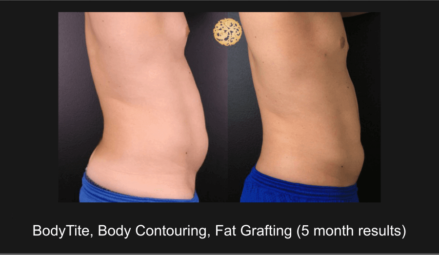 Fat Grafting / Fat Transfer