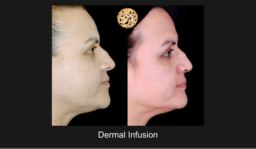 Dermal Infusion