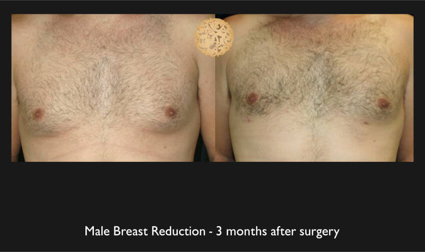 Male Breast Procedures Gallery