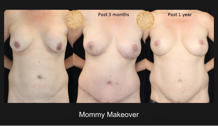 Mommy Make Over