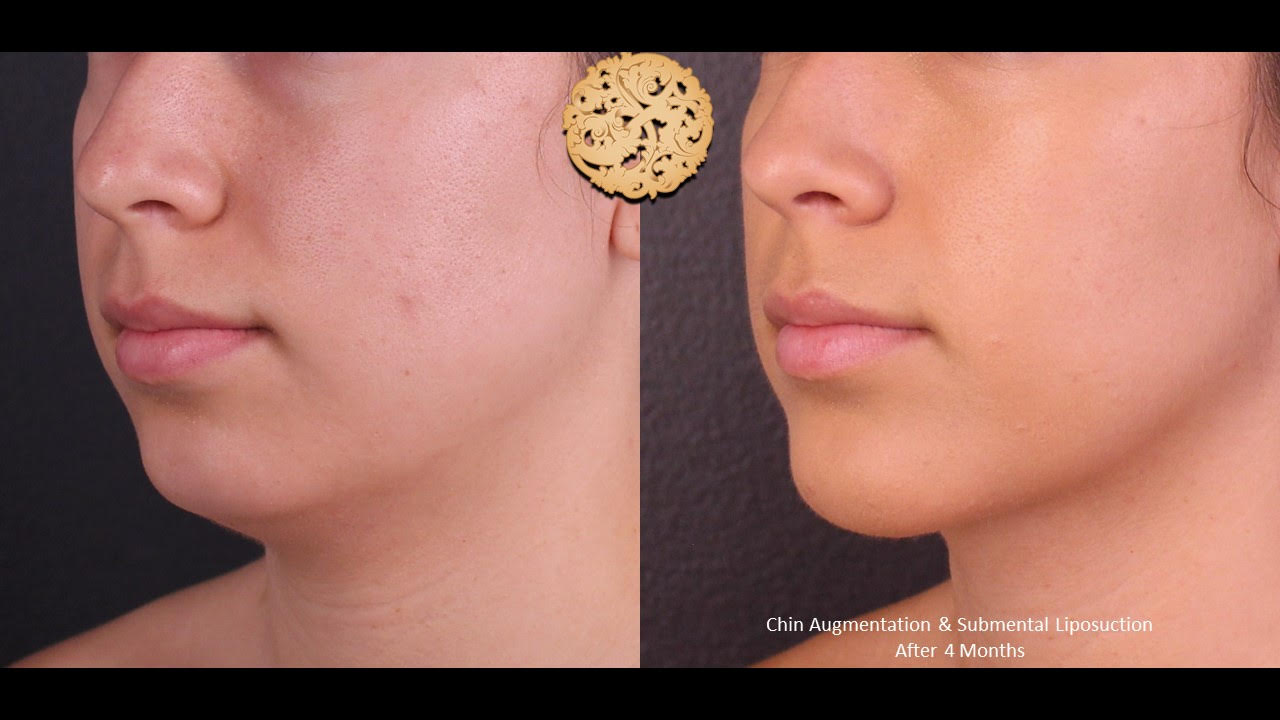 Chin Implant Before and After Photo Gallery