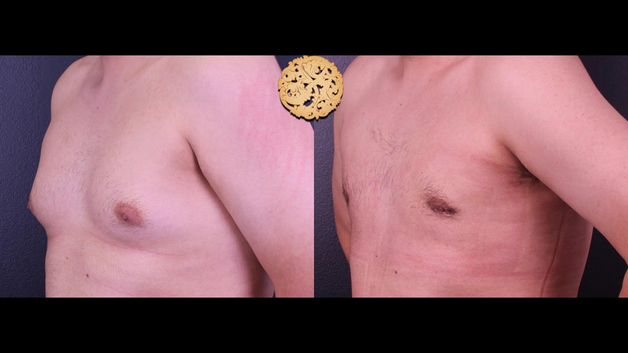 Male Breast Procedures Gallery
