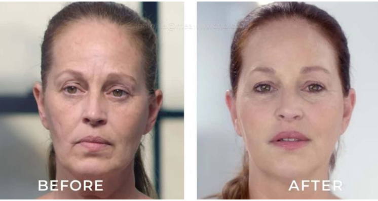 Skin Decision: Marla Hanson Is Modeling Again & Looks Great