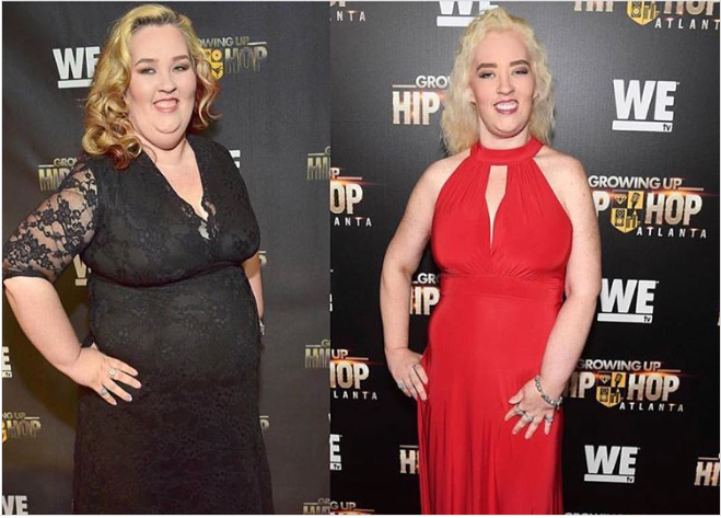 From Turkey to Swan: Mama June's Extreme Neck Lift Makeover