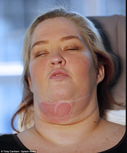 Mama June Shannon has fat-freezing procedure in attempt to get rid of her 'turkey neck' after losing 150lb
