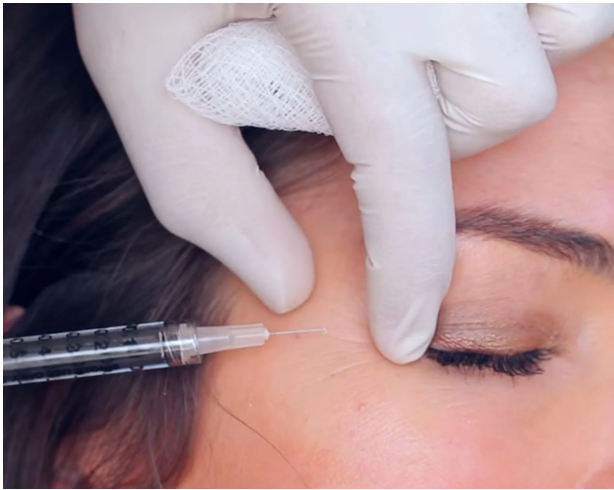 Do You Need to Start Botox Early? Maybe Not