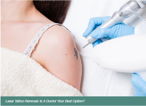 Laser Tattoo Removal: Is A Doctor Your Best Option?