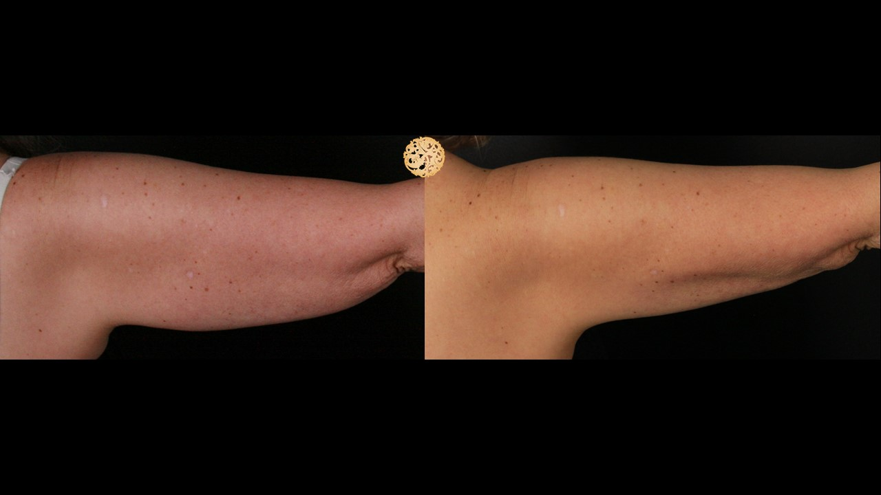 CoolSculpting Arms Gallery