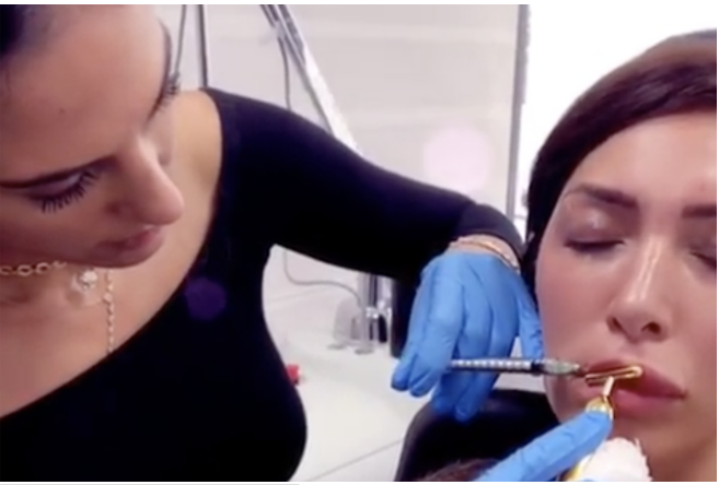 Farrah Abraham reveals she has removed her lip fillers, three days after Kylie Jenner