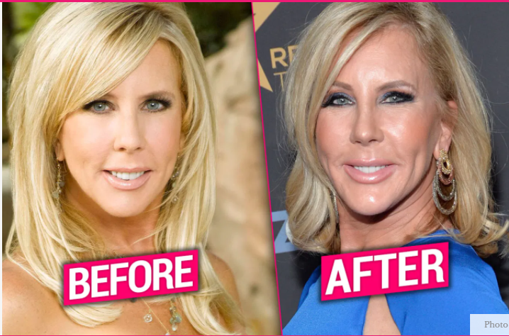 Vicki 3.0! Docs Claim Gunvalson Plumped Lips, Zapped Wrinkles In A NEW Makeover