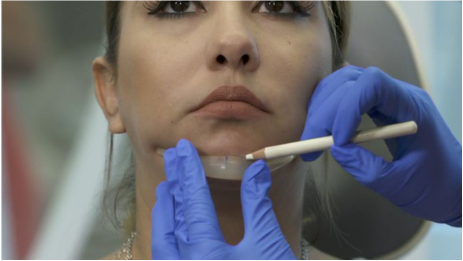 New Procedure Can Diminish the Double Chin