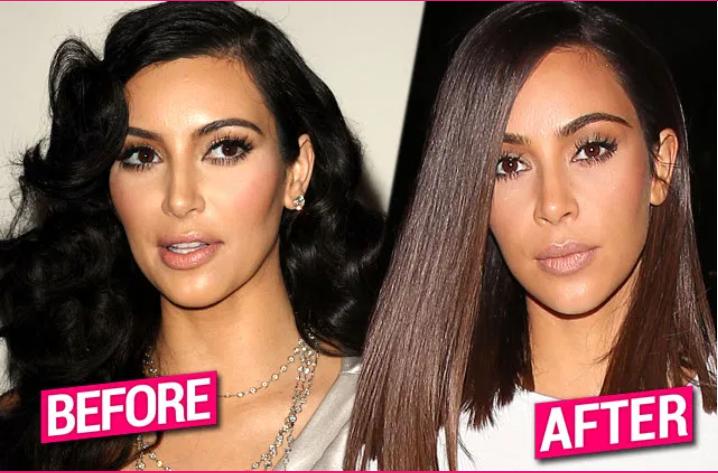 Secret Chin, Nose & Lips Surgery — Kim K's Drastic Plastic Obsession EXPOSED
