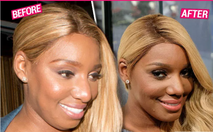 'RHOA' Star NeNe Leakes' New Nose Job Explained By 5 Top Docs