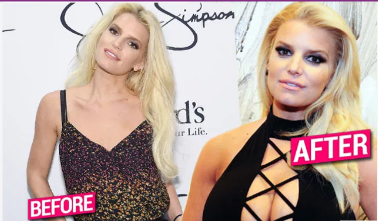 Jessica Simpson Fuels Breast Implant Rumors In Cleavage-Baring Dress