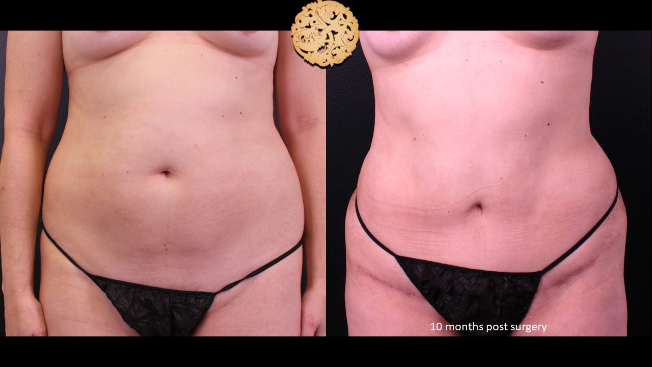 Mini Tummy Tuck Before And After Photo Gallery
