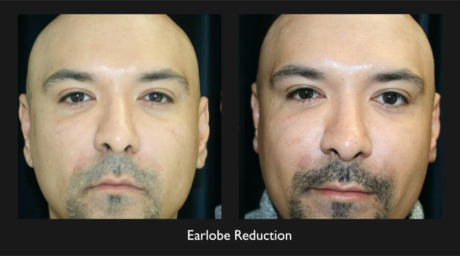 Earlobe Reduction Gallery