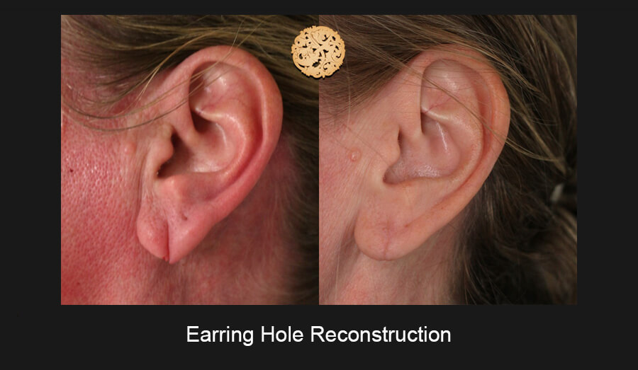 Earring Hole Recontruction Gallery