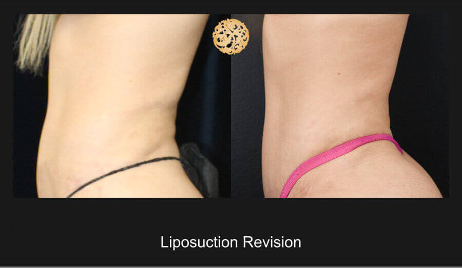 Liposuction Revision – Before and After