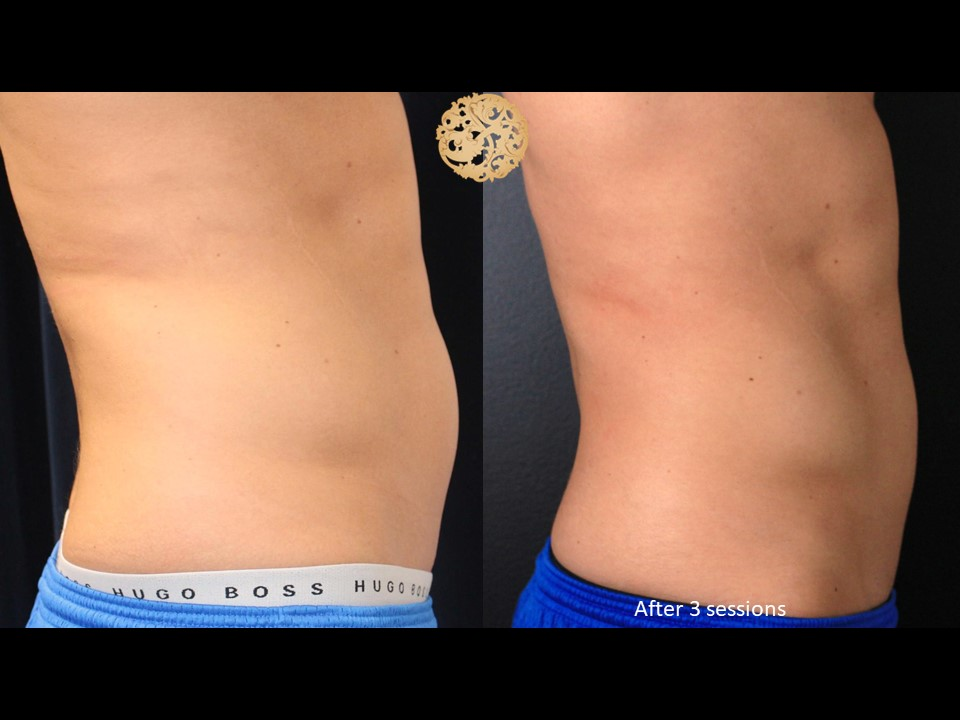 Male Coolsculpting Gallery