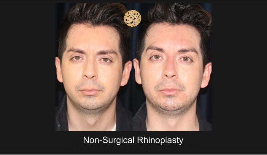 Non-Surgical Nose Job Gallery