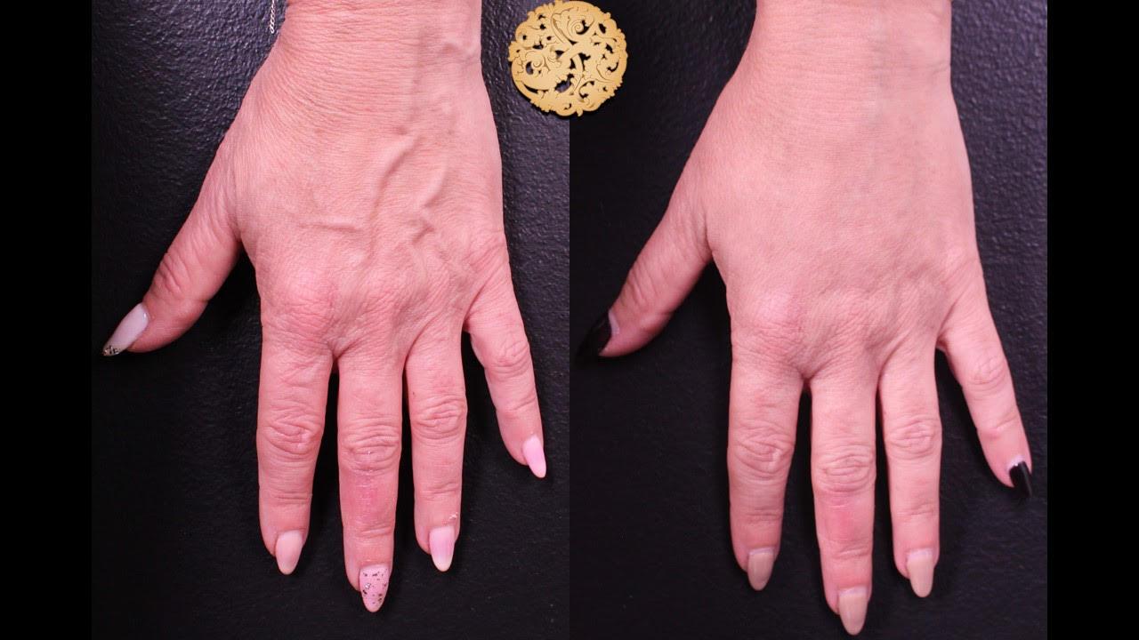 Hand Rejuvenation Gallery